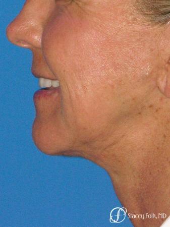 Denver Facial Rejuvenation Face Lift and Laser Resurfacing 7119 -  After Image 1