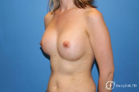 Denver Breast augmentation 7110 -  After Image 2