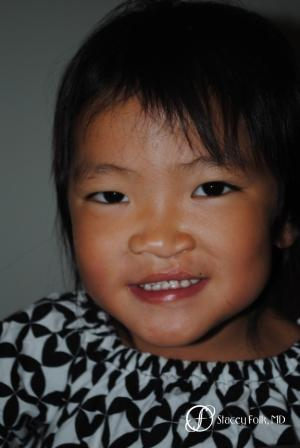 Denver Cleft Lip and Palate Repair 59 - After Image