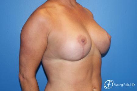 Denver Breast Lift 10252 -  After Image 4