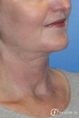 Denver Facial Rejuvenation Facelift, Blepharoplasty, Fat Transfer, Laser Resurfacing 10350 -  After Image 3