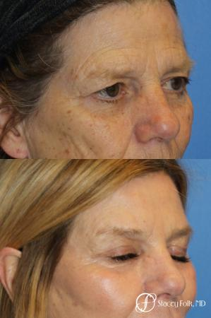 Denver Browlift and Blepharoplasty 11238 - After Image