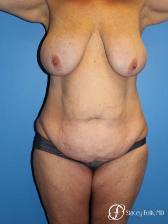 Denver Mommy Makeover Belt lipectomy, liposuction, mastopexy 5938 - Before Image