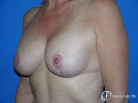 Denver Breast Lift and Augmentation 4557 -  After Image 2