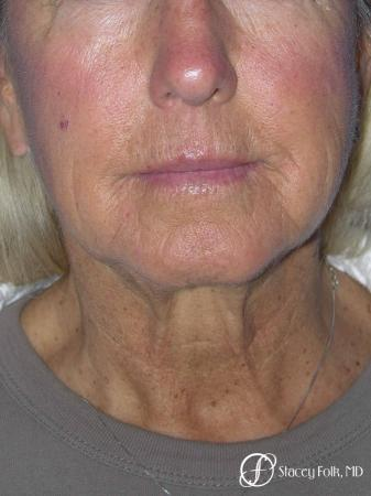 Denver Facial Rejuvenation Face Lift and Laser Resurfacing 7119 - Before and After Image 3