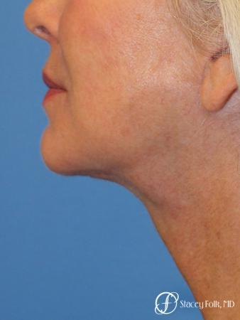 Denver Facelift & Laser Resurfacing 8277 - After Image