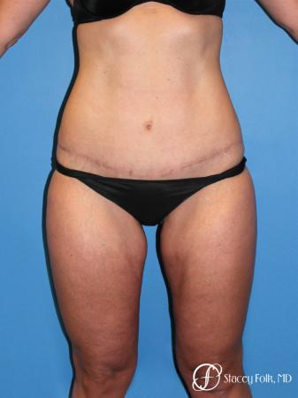 Denver Tummy Tuck Abdominoplasty and liposuction 4880 -  After Image 1