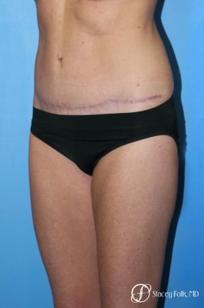 Denver Tummy Tuck - Abdominoplasty 7713 -  After Image 2