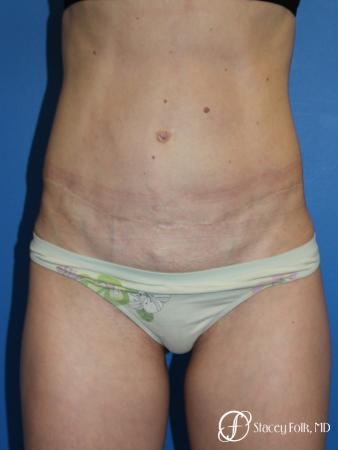 Denver Tummy Tuck (Abdominoplasty) 11239 - After Image