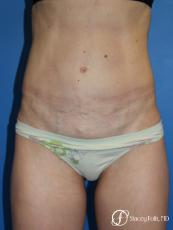 Denver Tummy Tuck (Abdominoplasty) 11239 - After Image