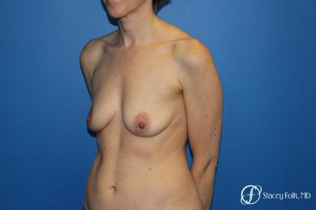 Fat Transfer Breast Lift: Patient 1 - Before and After Image 3