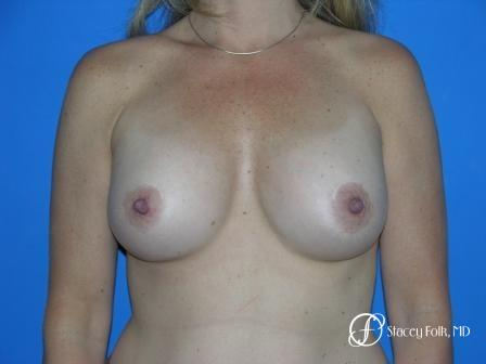 Denver Breast Augmentation 959 -  After Image 1