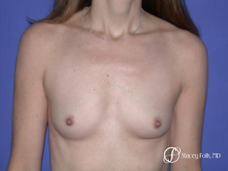 Denver Breast Augmentation 7 - Before Image 1