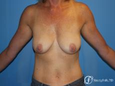 Breast Augmentation with Breast Lift (Augmentation/Mastopexy) - Before Image