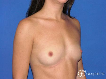 Denver Breast Augmentation 4779 - Before Image 2