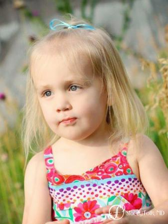 Denver Cleft Lip and Palate Repair 4776 -  After 2