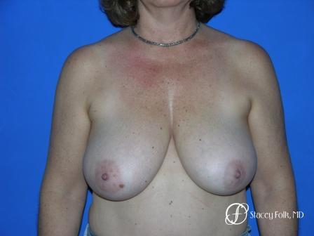 Denver Breast Reduction 36 - Before Image 1