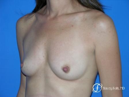 Denver Breast Augmentation 10 - Before Image 2