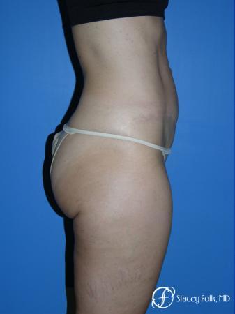 Denver Tummy Tuck Abdominoplasty 5485 -  After Image 2