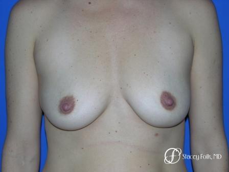 Denver Breast Augmentation 6 - Before Image 1