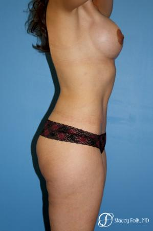 Denver Mommy makeover with a breast augmentation mastopexy and abdominoplasty 5352 -  After Image 3