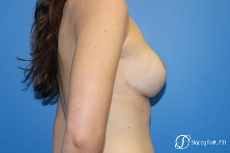 Denver Breast Lift - Mastopexy 10021 -  After Image 5