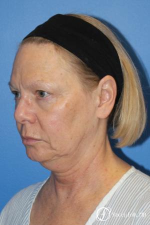 Facial Rejuvenation: Patient 1 - Before Image 2