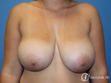 Denver Breast Lift - Mastopexy 10021 - Before Image