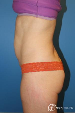Denver Tummy Tuck - Abdominoplasty 8266 - Before and After Image 3