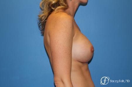 Denver Breast augmentation 4740 -  After Image 4