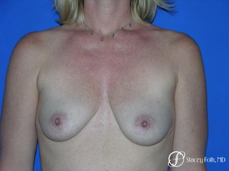 Denver Breast Lift and Augmentation 4555 - Before Image