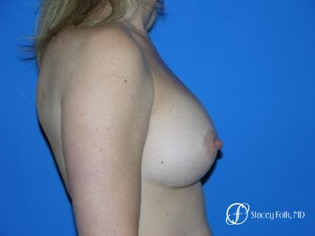 Denver Breast Augmentation 959 -  After Image 3