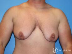 Denver FTM Female to male top surgery 5252 - Before Image