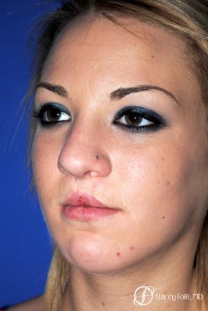 Denver Septorhinoplasty and Cleft Lip Repair 8162 - Before Image 2