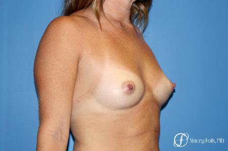 Denver Breast Augmentation using Sientra Silicone Breast Implants 9092 - Before Image 2