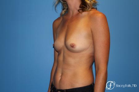 Denver Breast augmentation 4740 - Before Image 3