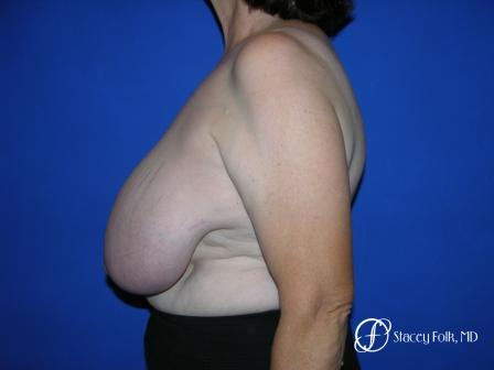 Denver Breast Reduction 37 - Before and After Image 3