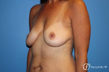 Denver Fat Transfer Breast Lift Mastopexy with Fat Transfer to the Breast 6916 - Before Image 2