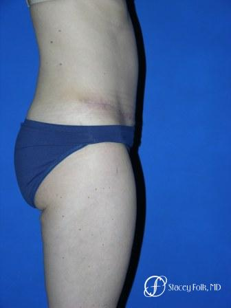 Denver Tummy Tuck 35 -  After Image 3