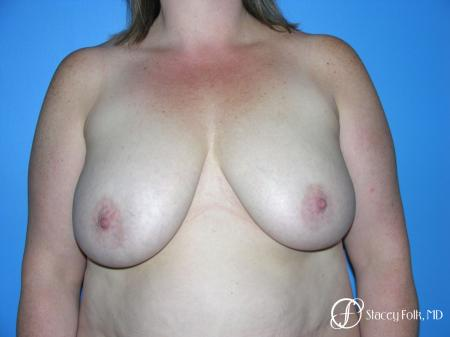 Denver Breast Reduction 4799 - Before Image
