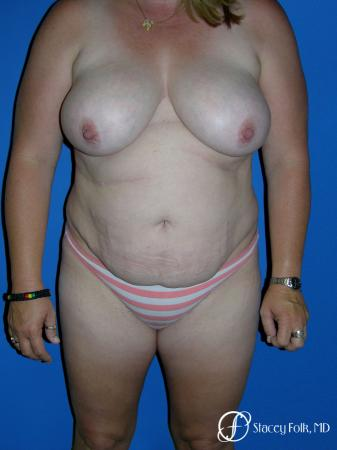 Denver Mommy makeover, breast reduction, abdominoplasty, liposuction 5355 - Before Image 1