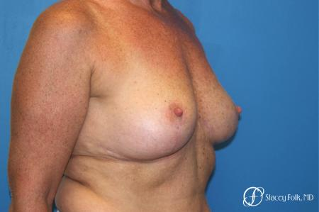 Denver Breast Revision 8543 -  After Image 2