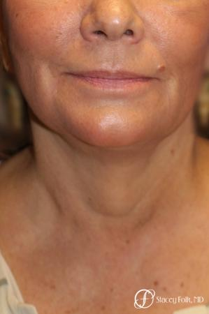 Denver Facial Rejuvenation Face Lift, Fat Injection, Laser Resurfacing 7123 -  After Image 3