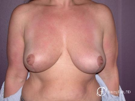 Denver Breast Reduction 45 -  After Image 1