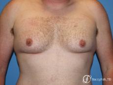 Denver FTM Female to Male Top Surgery 7109 - Before Image