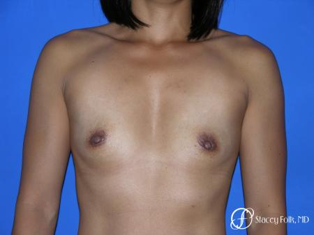 Denver Breast Augmentation 3629 - Before Image