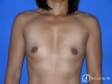 Denver Breast Augmentation 3629 - Before Image