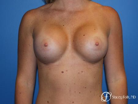 Breast Augmentation with Sientra Textured Implants -  After Image 1