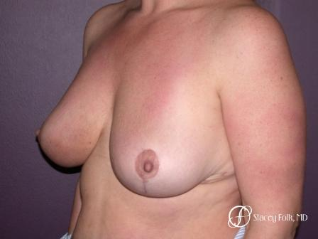 Denver Breast Reduction 45 -  After Image 2