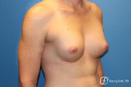 Denver Male to female top surgery with Sientra anatomic textured classic implants 5256 -  After Image 3